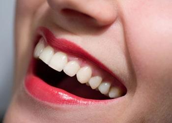 Cosas que debes saber sobre la endodoncia