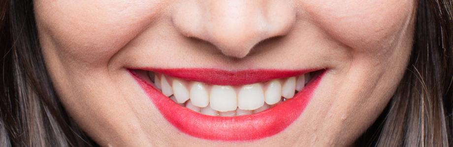 Resolvemos tus dudas sobre la ortodoncia invisible