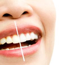 Por qué hacerse un blanqueamiento dental